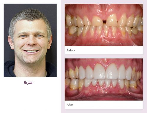 client-Bryan-before-after
