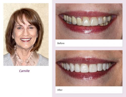 client-Camille-before-after