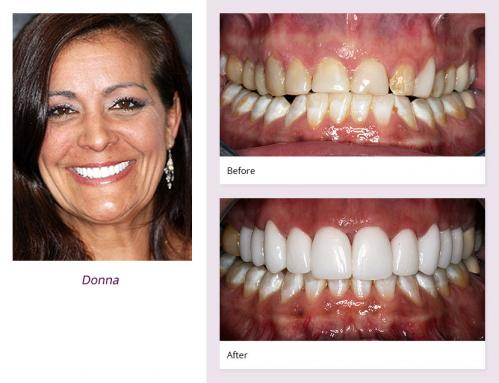client-Donna-before-after