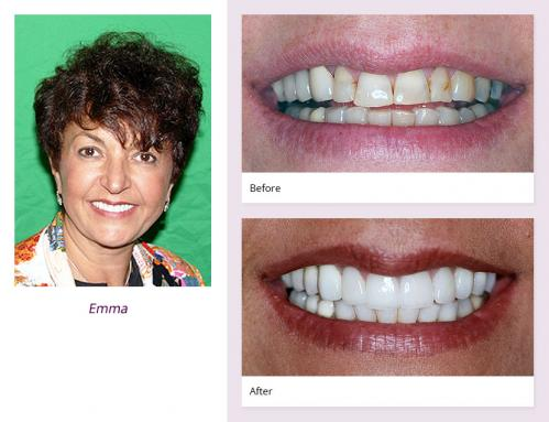 client-Emma-before-after