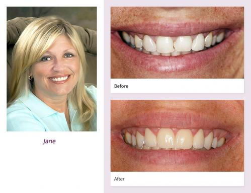 client-Jane-before-after