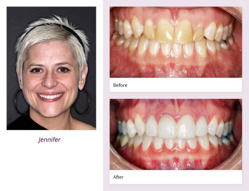 client-Jennifer-before-after