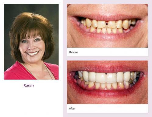 client-Karen-before-after