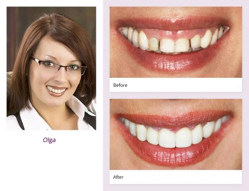 client-Olga-before-after