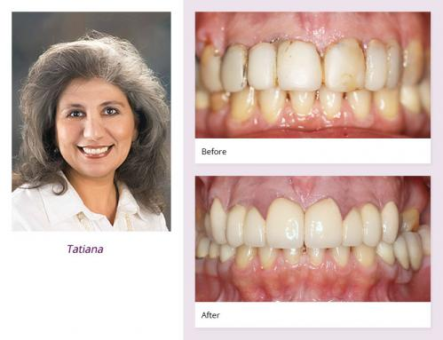 client-Tatiana-before-after