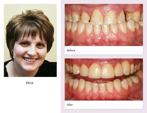 client-Vera-before-after